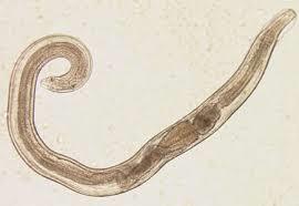 Enterobius vermicularis parasitologia. Fiecare greutate rapid usor pierde