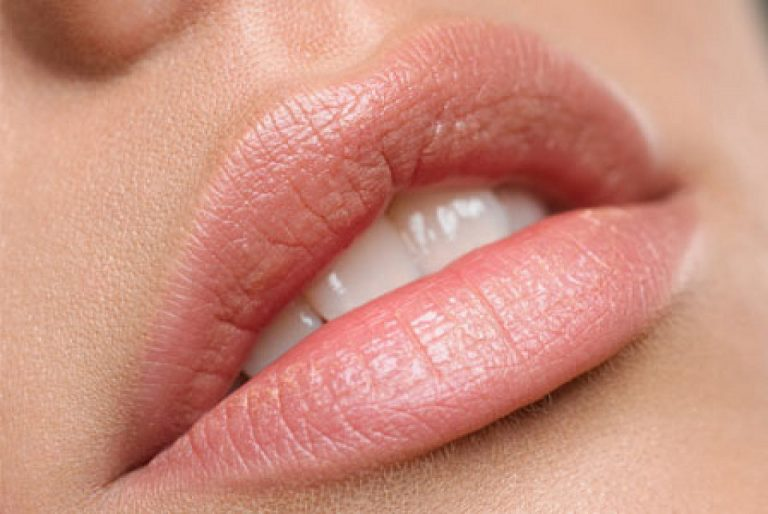 Bocca con papilloma virus, Lesioni papilloma virus bocca