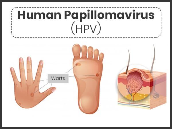 papilloma virus wart treatment