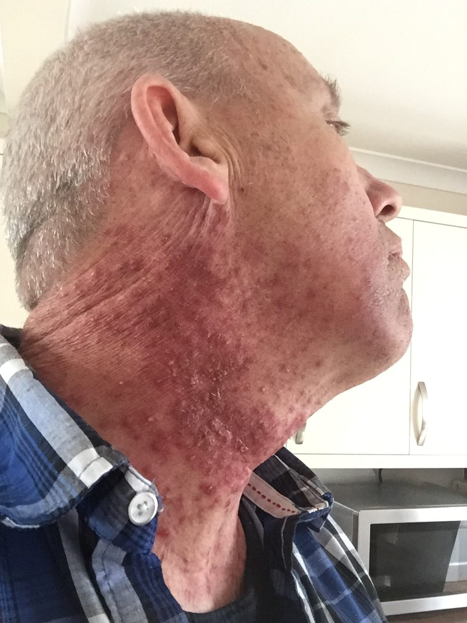 hpv throat cancer after treatment