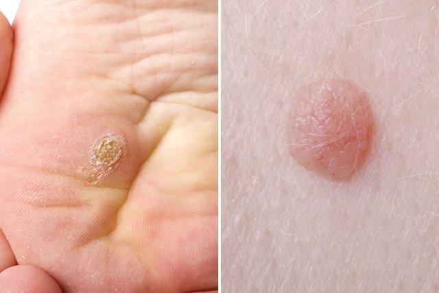 Virus papiloma una mujer. Tratamiento para el virus papiloma humano en mujeres - Displasia Cervical