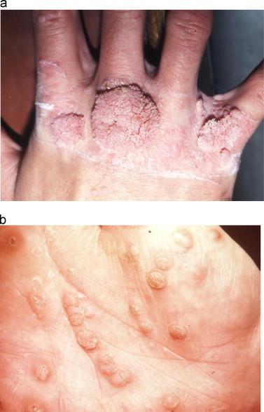 human papillomavirus on knee