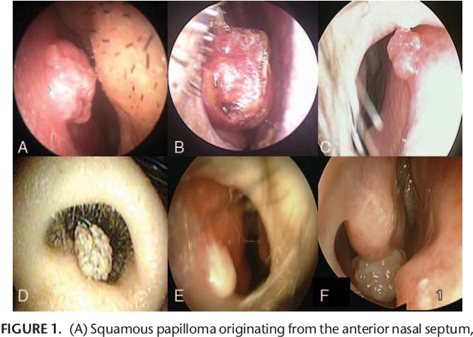 squamous cell papilloma nasal pastila parazita pentru oameni