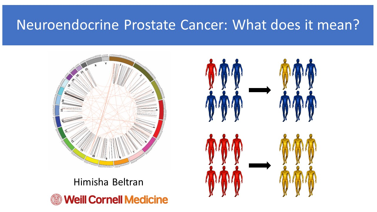 Neuroendocrine cancer facts, Aggressive cancer prostate prognosis - Neuroendocrine cancer survivors