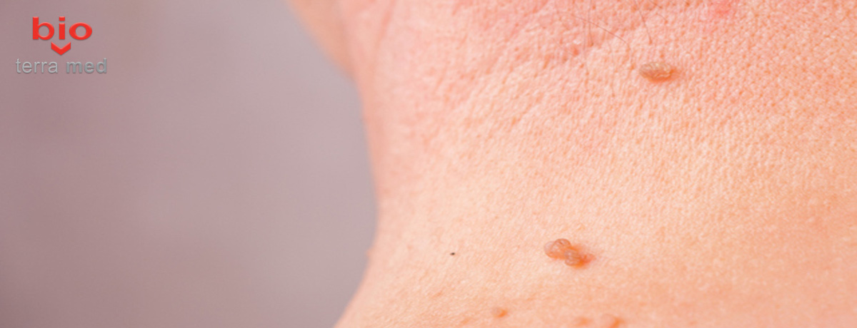 papilomele sigure papillomavirus vaccin belgique