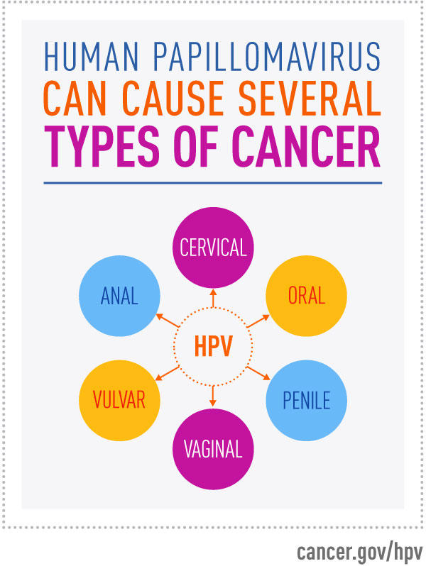 Does hpv always become cancer - Does hpv always become cancer