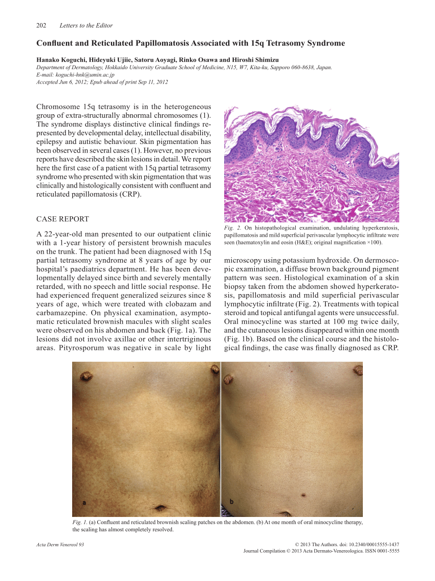 Histology of confluent and reticulated papillomatosis