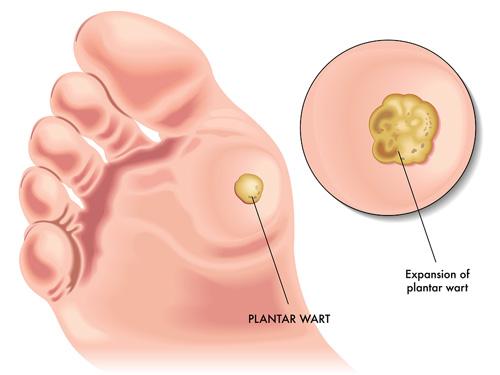 detoxifiere colon cu apa sarata papillomavirus medical definition