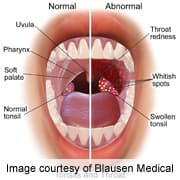 hpv and uvula