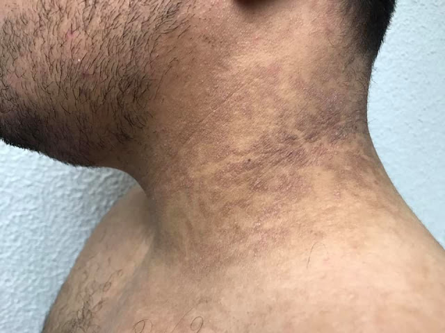 Papilomatosis confluente tratamiento. Picioarelor părul Papilomatosis confluente tratamiento