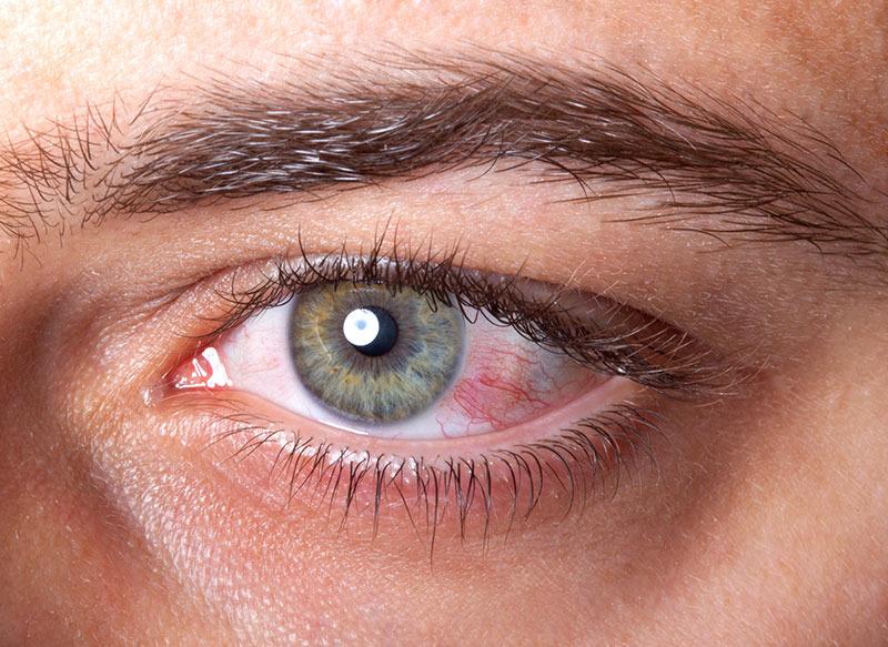 parazit în tratamentul ochilor