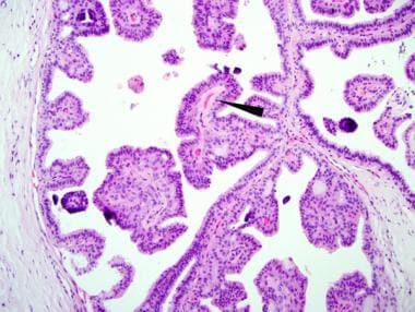small duct papillomatosis