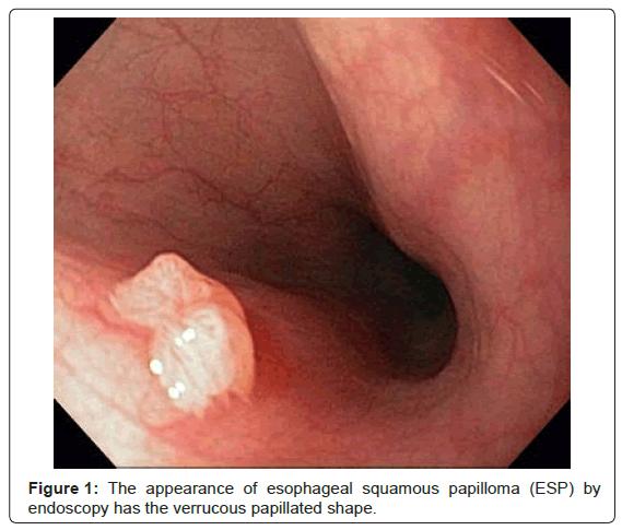 papilloma virus esophagus cea mai bună pastilă a viermei rotunde