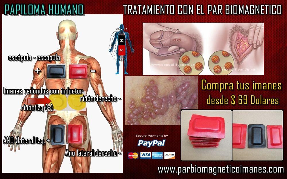 Cancer gastrico peritoneal - Chimioterapia hipertermică (HIPEC)