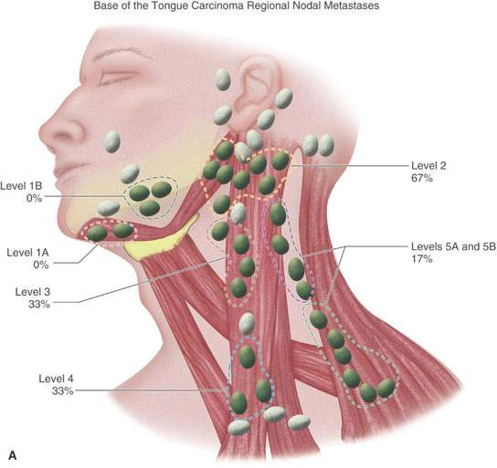 metastatic cancer head and neck