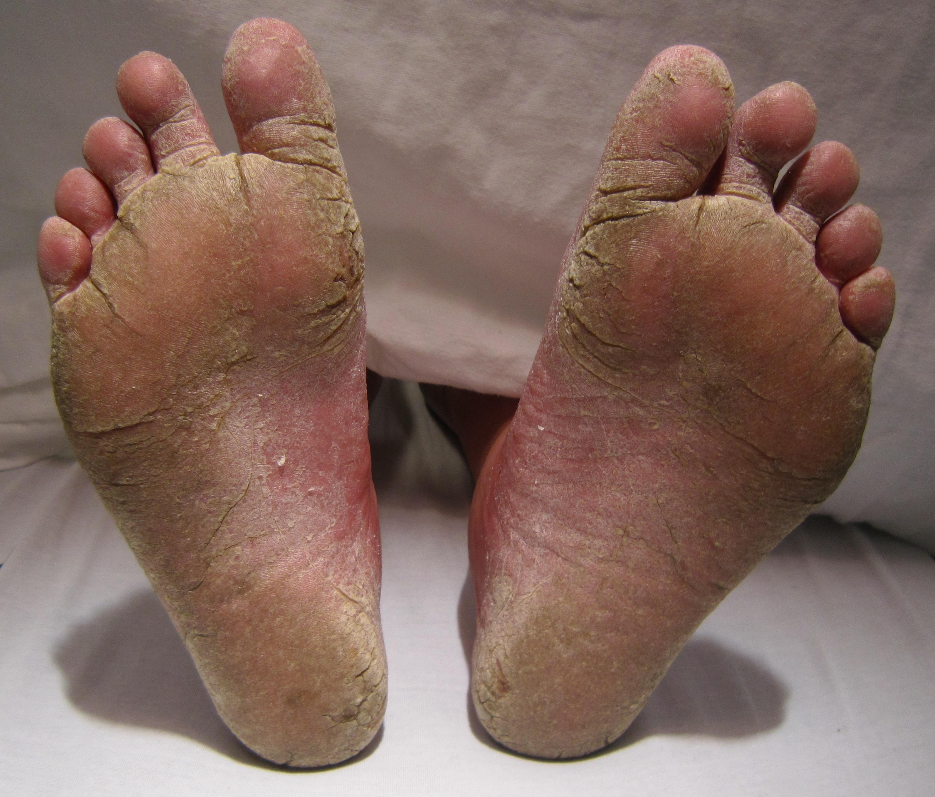 ciuperci ale piciorului verucile genitale se infectează dacă sunt prezente