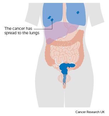 Aggressive cancer in womb, Varicoasă vitamine uterin