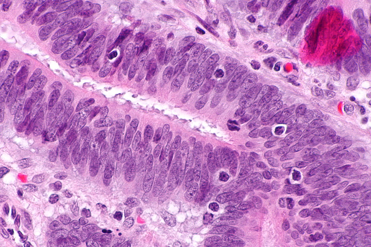 rectal cancer pathology
