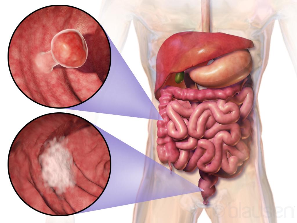 cancer de colon genetic