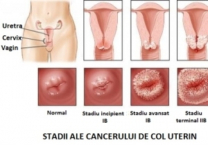cancer la ovare cauze