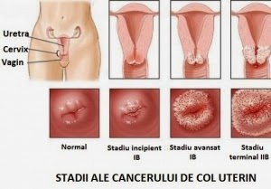 negii pe colul uterin cauzează
