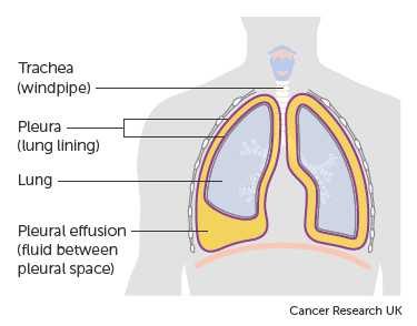 lung cancer abdominal bloating