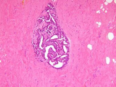 Intraductal papilloma patient uk,
