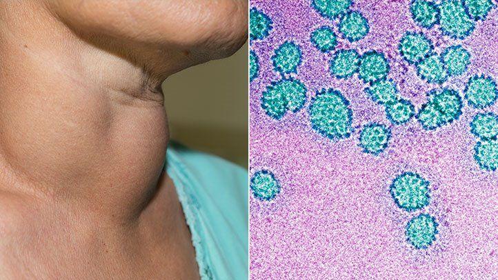 papilloma virus man