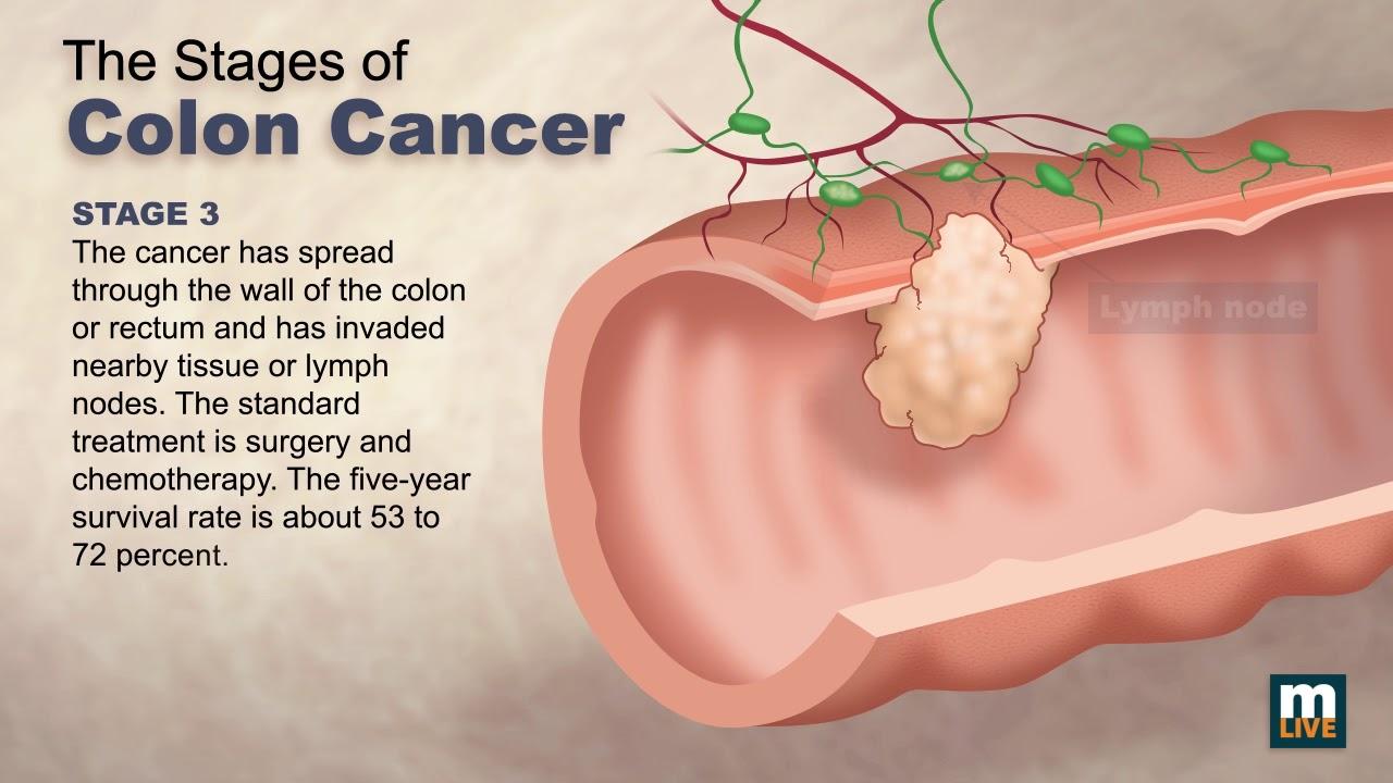 EASY HPV TEST – testul care poate fi efectuat acasă pentru prevenirea cancerului de col uterin