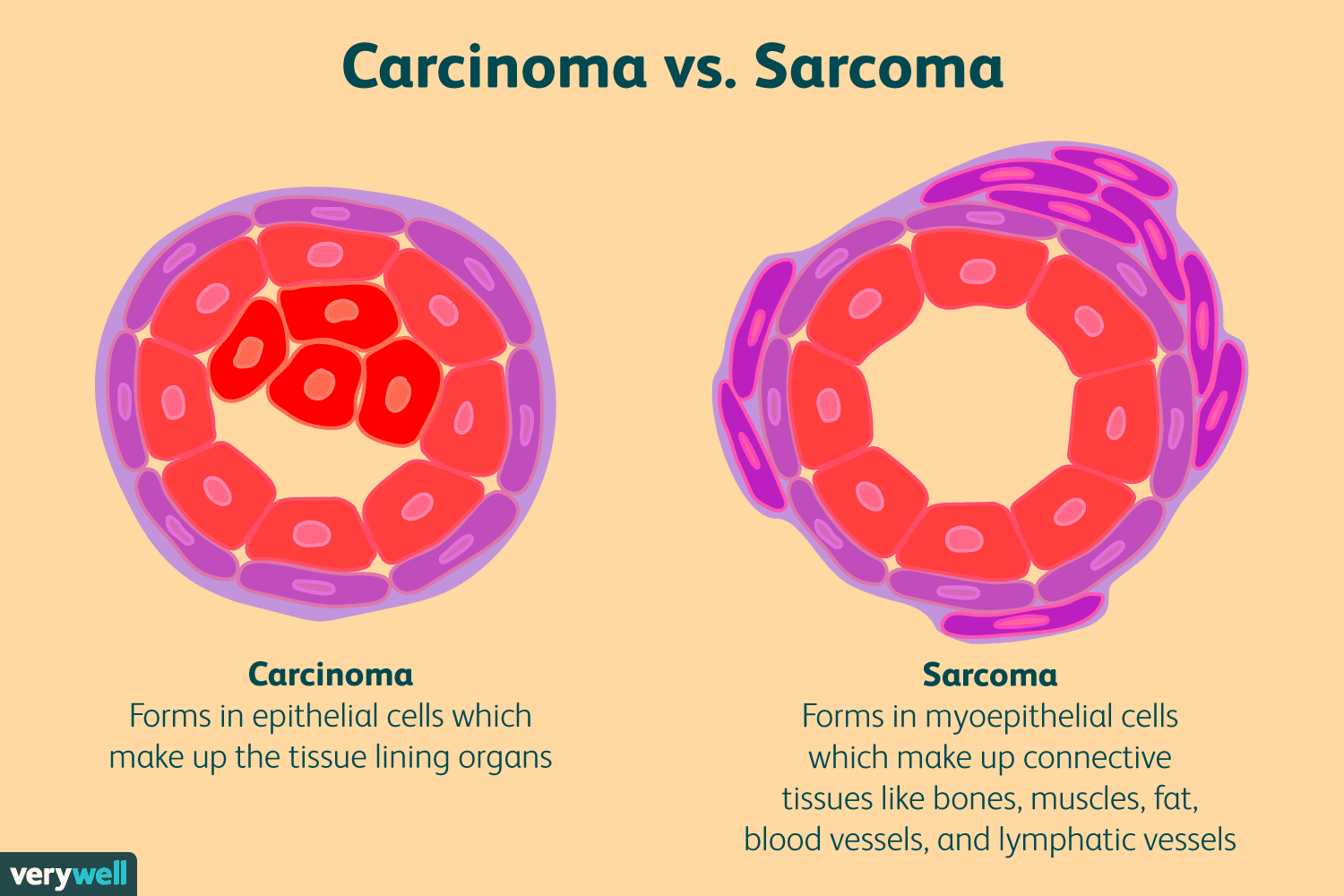 Sarcoma cancer from radiation