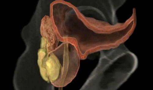 cancerul de prostata si viata sexuala hpv vaccino richiamo