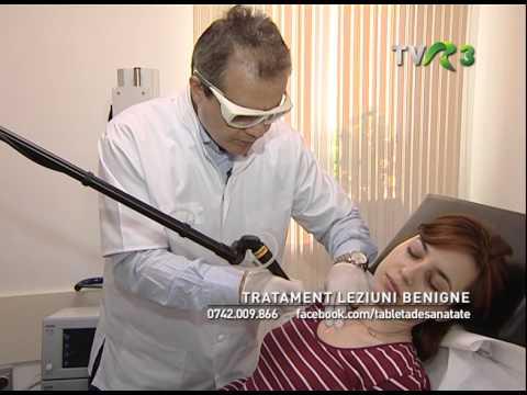 tratamentul condilomului pe fata tablete pentru paraziții corpului uman