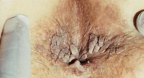metoda de infecție a verucilor genitale