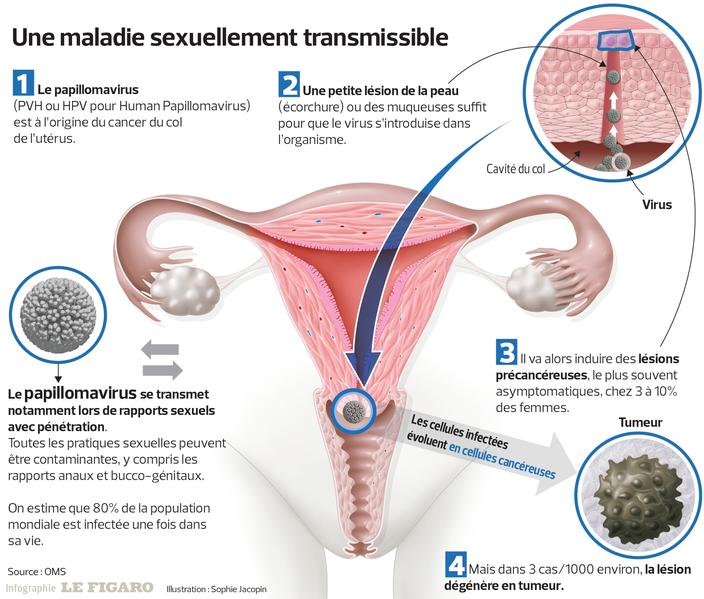 Papillomavirus hpv homme. verrues - Traducere în română - exemple în franceză | Reverso Context