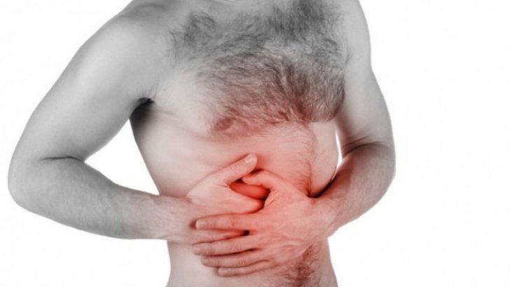 Cancer de colon - Tot ce trebuie să ştii | Cancer