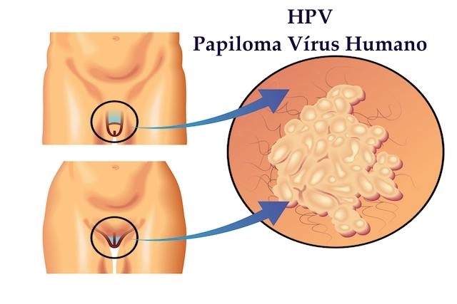 papillomavirus verrue inverted papilloma malignant degeneration