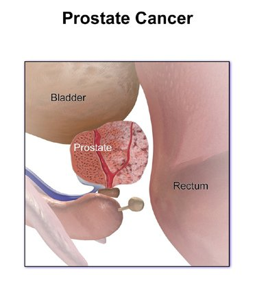 aggressive cancer of the prostate
