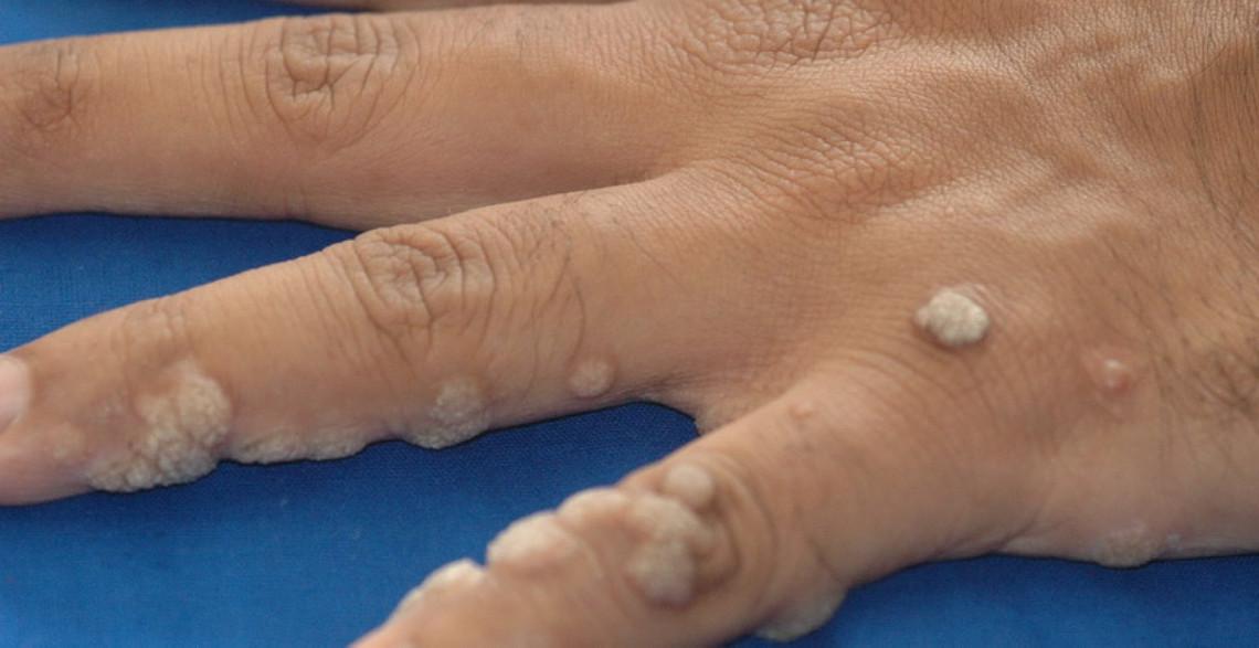 Papiloamele – cauze, tipuri, metode de tratament - Cancer