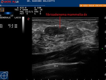 Papilloma seno intervento. Category: DEFAULT - Papilloma seno intervento