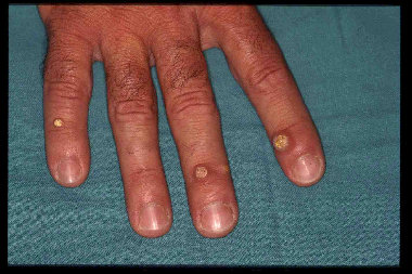 Papilloma virus sulle mani - thecroppers.ro