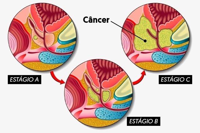 cancer de prostata linguagem do corpo