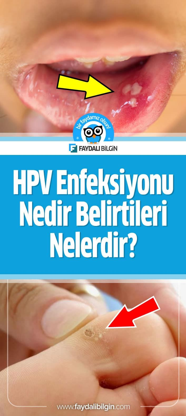 Papilloma virusu tedavisi.