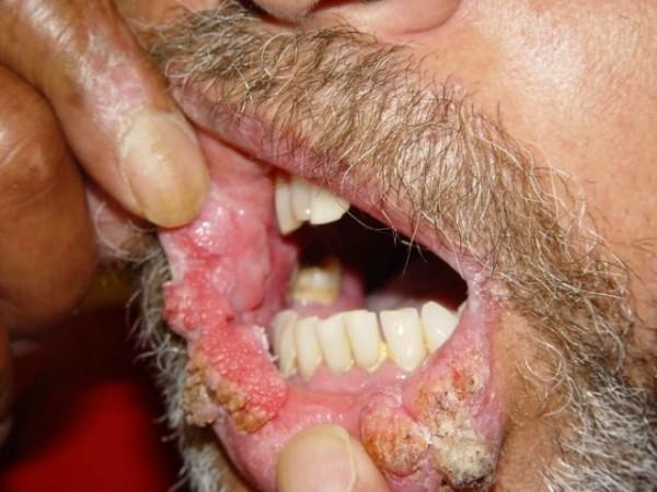 condiloame și papule sidefate schistosomiasis myanmar