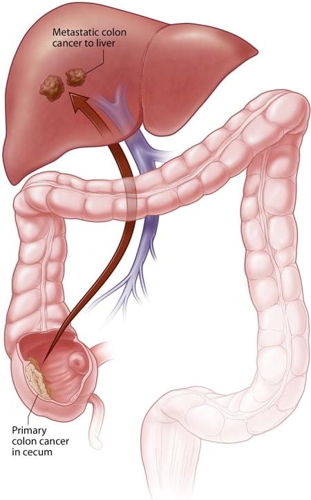 cancer de colon in metastaza