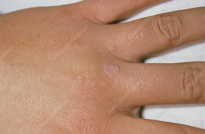 hpv virus warts hands