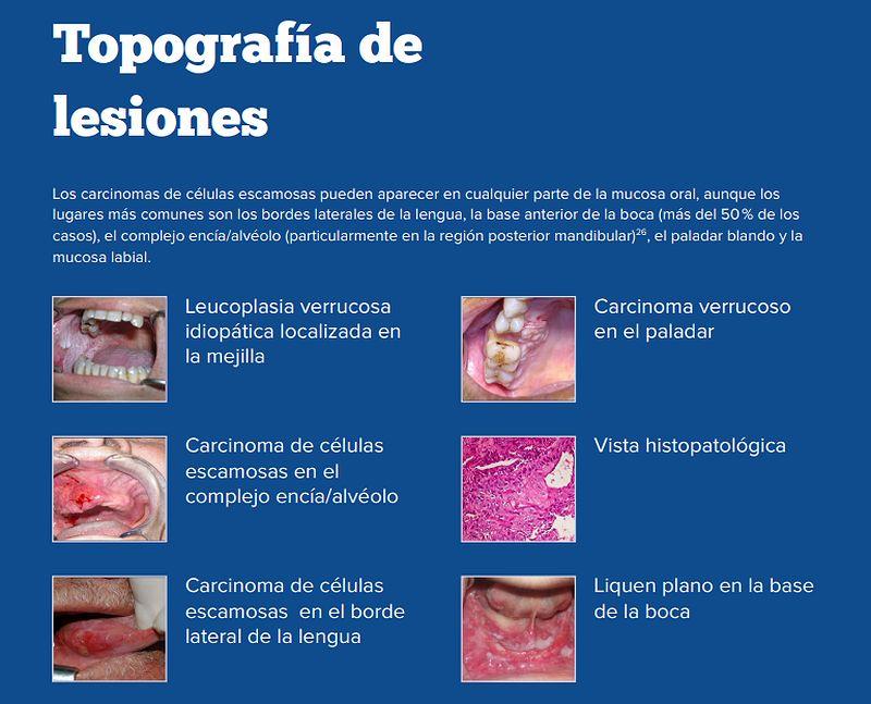 papiloma krema iskustva tratamentul condilomului limbii