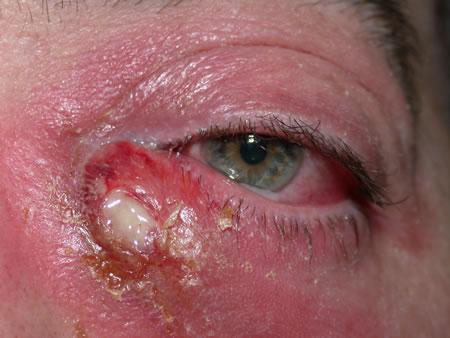 squamous papilloma lacrimal sac