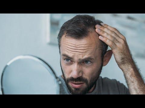tratamentul viermilor alopeciei