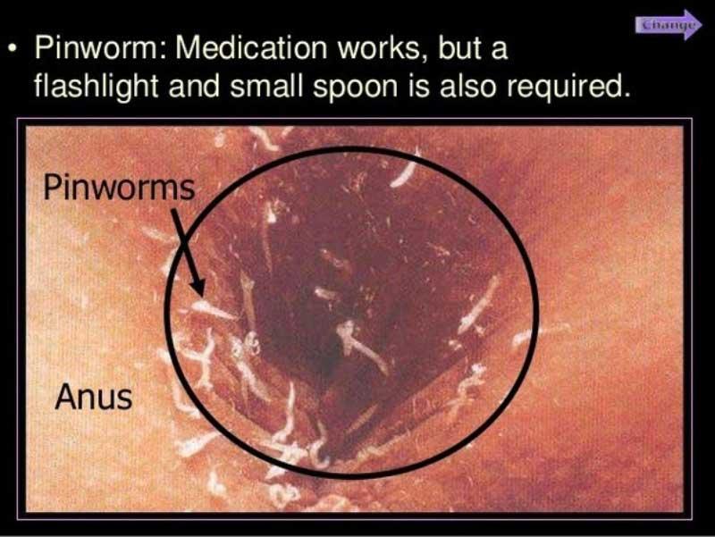tratament pentru oxiuri cu vermox