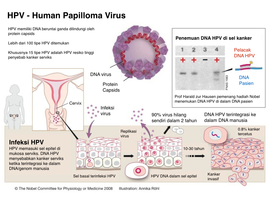 Virus del papiloma nic 1